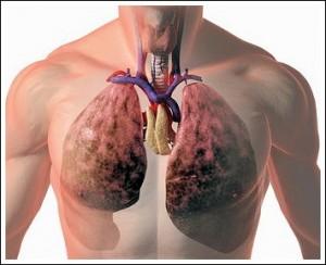 Лечение заболеваний легких