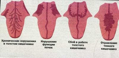 индикатор здоровья, язык, строение языка, диагностика языка