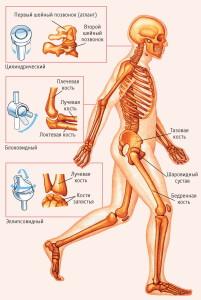 +как лечить суставы, суставы, артрит, ревматизм, критика, как лечить артрит