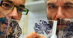 болезнь Альцгеймера лечится без лекарств